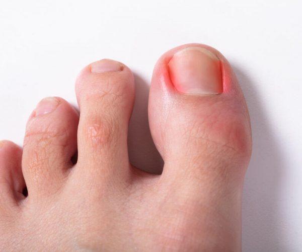 Close-up Of Sore Toe Nail