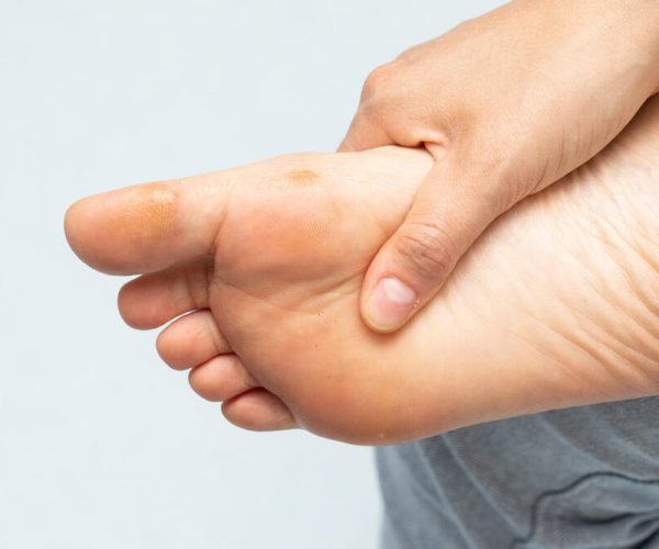Female hand tightening its foot with calluses and warts