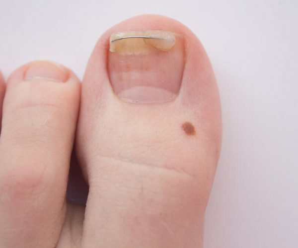 Nail figure, ingrown nail, onychocryptosis. toenail clamp on an ingrown toenail